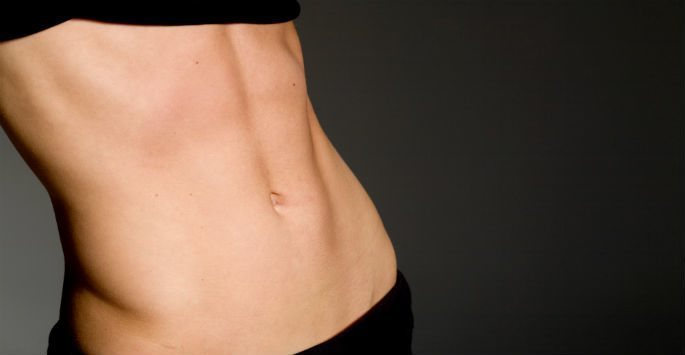Laser Liposuction with SmartLipo